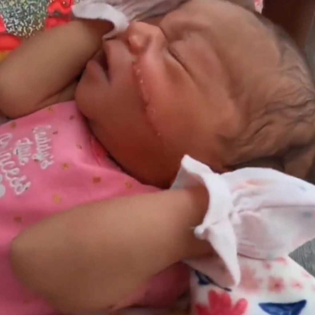 Kyanni has a slash across her left cheek. The newborn was rushed to a plastic surgeon where she received 13 stitches.