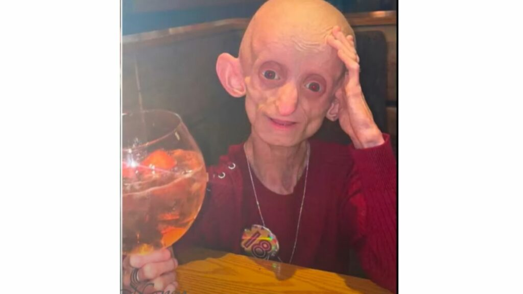 Ashanti Smith, pictured here on her 18th birthday, suffered from Benjamin Button syndrome, but she never let her condition get in the way of her life.